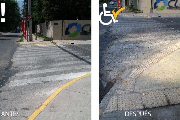Antes y después rebaje clinica las condes_antes y después
